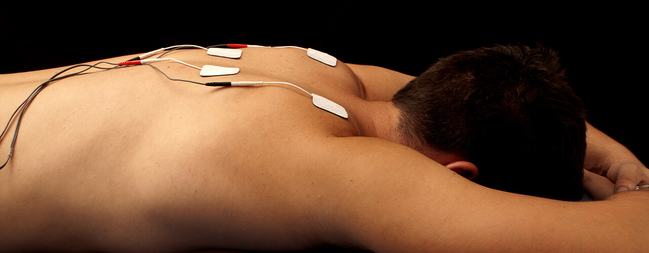 Electrical Stimulation Therapy Burlingame, CA